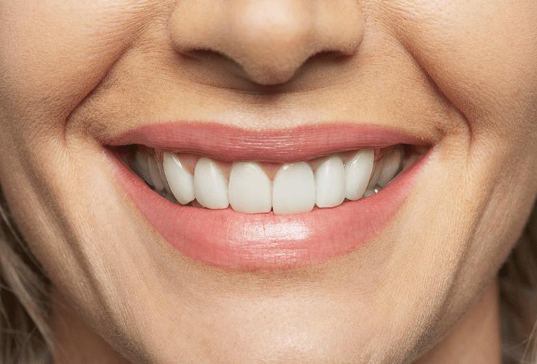 smileprotese hos Proteseeksperten Holbaek